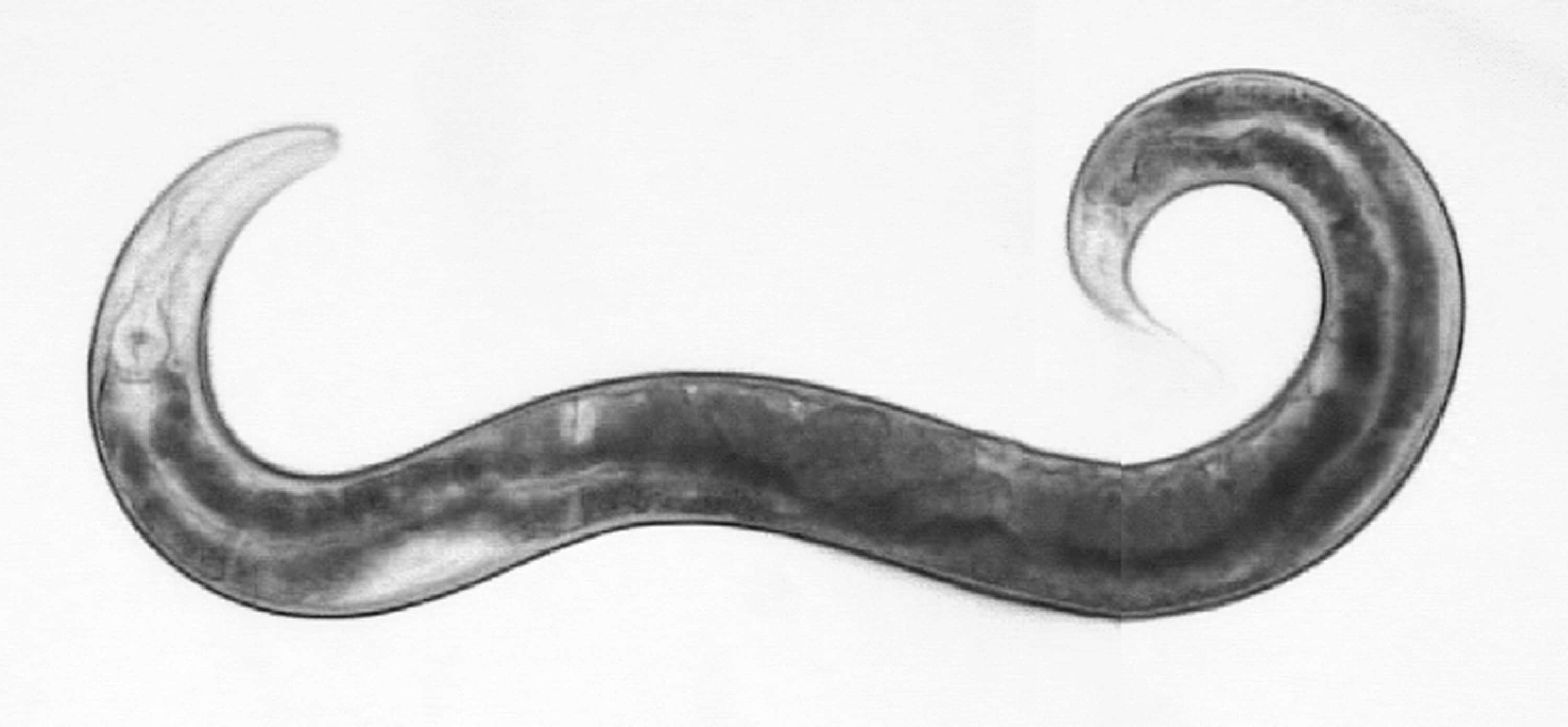 Sit uses C. Elegans, a type of roundworm, to study immunology. (unews.utah.edu)